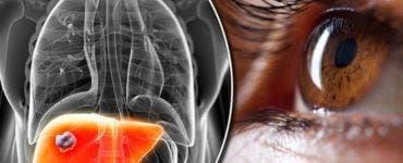 Cele mai periculoase alimente pentru ficat. Medicii recomandă să le eviți