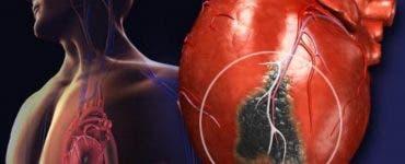 Ce simptome are fibrilația atrială, boala care afectează mii de români
