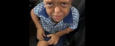 Drama unui copil de 9 ani care suferă de nanism. Copilul i-a cerut mamei sale o frânghie ca să se sinucidă