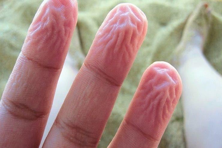 De ce se încrețește doar pielea de pe degete și palme atunci când stăm mult în apă