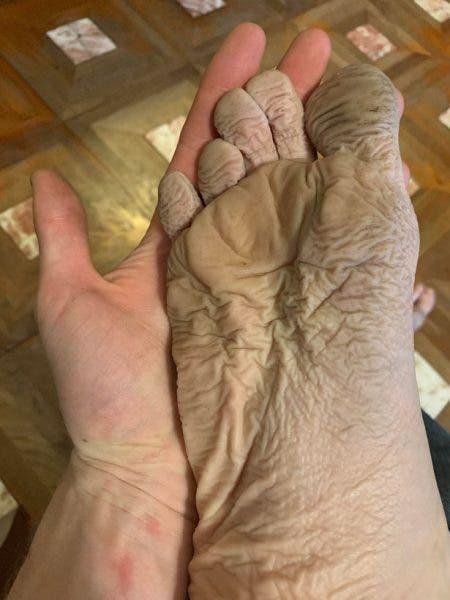 ajutor pentru picioarele și gleznele umflate de ce ma doare picioarele intregi