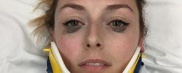 A suferit un accident teribil, dar femeia era în culmea fericirii. Mesajul de pe patul de spital te va surprinde