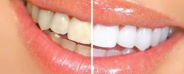 Albire dinți