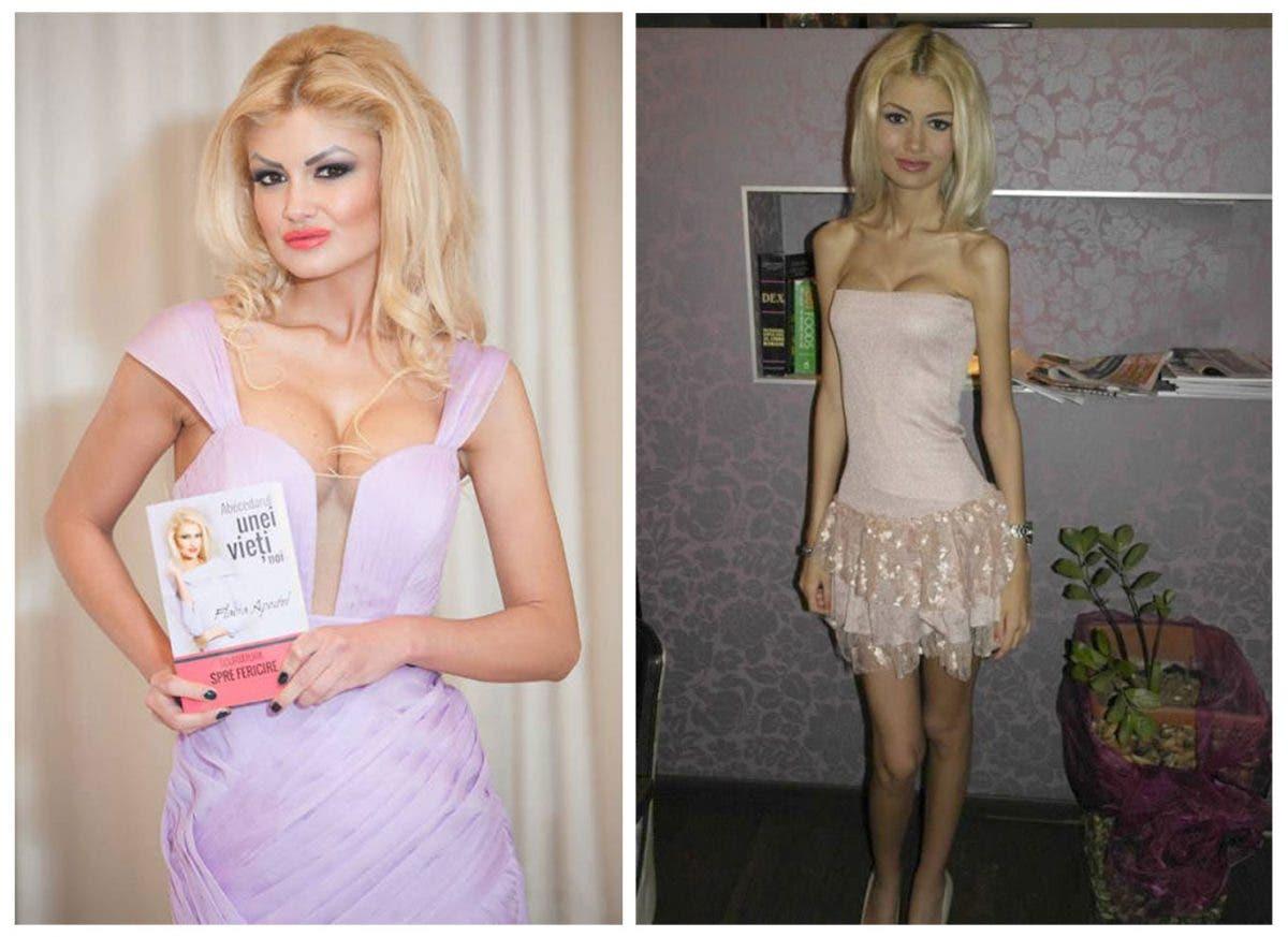 O mai ţii minte pe Flavia? În 2013, era cea mai anorexică femeie din România şi avea doar 38 KG. Uite cum arata acum