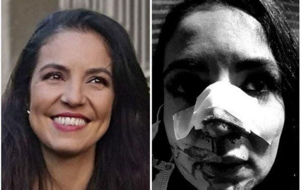 Cristina Joia a fost bătută în fața unui supermarket