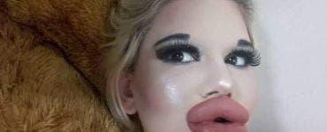 Femeia cu cele mai mari buze din lume și-a făcut o noua operație estetică! Blondina este de nerecunoscut acum