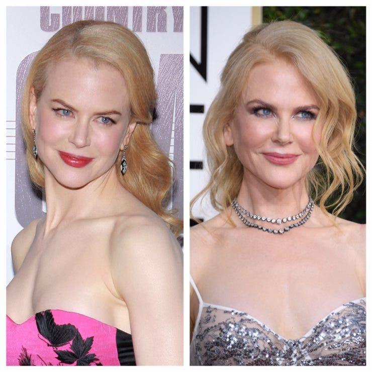 Cum s-a transformat Nicole Kidman după operațiile estetice! Actrița este de nerecunoscut