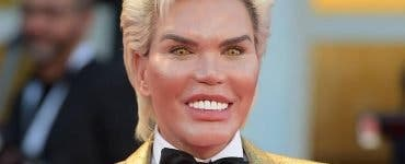 Păpușa umană Ken este nerecunoscut! Rodrigo Alves a investit un milion de dolari pe operațiile estetice