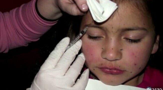 Fetita imjectata cu botox