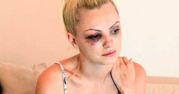 De ce nu a putut face față Alexandra Stan la Survivor? Artista trăiește cu un singur rinichi