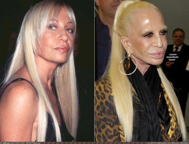 Donatella Versace este total schimbată! Cum au transformat-o operațiile estetice de-a lungul anilor