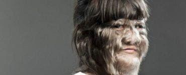 """""""Femeia-vârcolac"""" și-a surprins soțul cu trăsăturile ei și l-a făcut să se îndrăgostească iremediabil de ea! Este de nerecunoscut după ce și-a ras tot părul"""