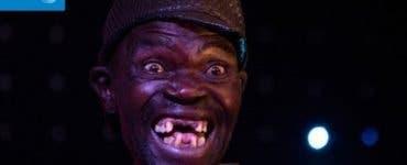 Cel mai urât bărbat din Zimbabwe