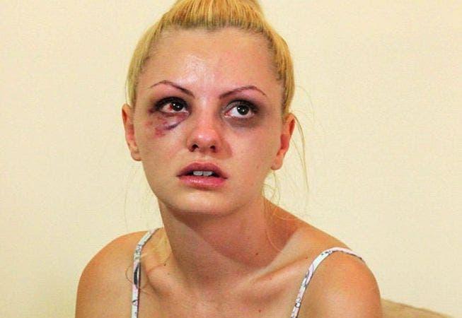 Top 5 vedete din România bătute de iubiții lor! Declarațiile șocante ale vedetelor