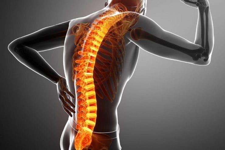 Durerile de spate, cauze și tratamente specifice. Nu arată întotdeauna o afecțiune a oaselor